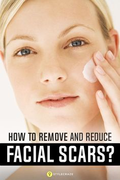 How To Remove Facial Scars Naturally