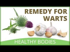 How To Get Rid Of Wart On Foot | Natural Verruca Removal - YouTube