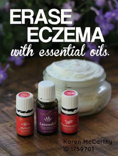 The oils are great for skin conditions!