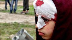 SYRIA: 2,5 millioner barn er direkte rammet på toårsdagen for den blodige konflikten. Fredag markeres toårsdagen for den blodige konflikten i Syria, som ifølge FN har krevd over 70.000 menneskeliv. Bildet viser et syrisk barn som ble skadet i et bombeangrep tidligere denne måneden. Nettavisen.no