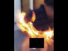 Karena kesal diselingkuhi, perempuan ini bakar kemaluan pacarnya