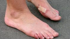 Gout on the rise? - Fox News
