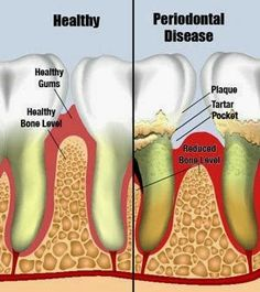 Periodontal or gum disease has been proven to be associated with heart disease, diabetes, respiratory disease, digestive problems, osteoporosis, and immune disorders. Google+