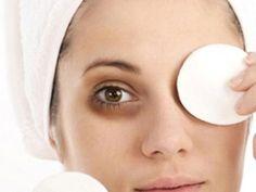 Augenringe können Vorboten bevorstehender Krankheiten, Ausdruck der Müdigkeit oder sogar erblich bedingt sein, jedoch auf gar keinen Fall schön. Was tun, um sie los zu werden?