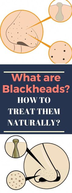 Blackhead Remover For Acne Care - How Effective Can it Be? Blackhead Remover Tools - More Harm Than Good for Your Skin? Blackhead Remover Tools For Treating Blackheads} * Find out more at the image web link. Warts On Hands, Warts On Face, What Are Blackheads, Get Rid Of Blackheads, How To Treat Blackheads, Face Scrub Homemade, Homemade Skin Care, Get Rid Of Warts, Remove Warts