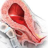 prevention and management of postpartum hemorrhage - march 15, Skeleton