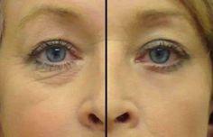 Beaucoup de femmes de sentent complexées par l'apparition des rides autours des yeux, plus familièrement appelées « les pattes d'oies ». C'est généralement en vieillissant, que c'est ridules font l…