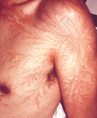 Struck by lightning. The red patterns that appeared on the skin after surviving being struck are called Lichtenberg figures. Its the shape electric discharges make after passing through an object. A tattoo straight from the skies.