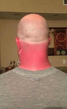 A Real Life Redneck - Good Thing I Wore a Hat - Uneven Red Neck Sunburn WTF  ---- best hilarious jokes funny pictures walmart humor fail