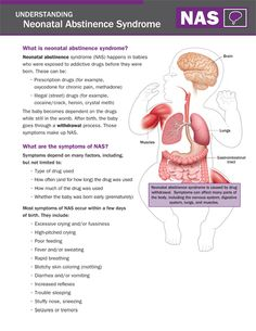 Understanding Neonatal Abstinence Syndrome (NAS) including Signs and Symptoms of… Postpartum Nursing, Newborn Nursing, Child Nursing, Nursing Notes, Nursing Students, Neonatal Nursing, Ob Nursing, Pharmacology Nursing, Nursing Programs