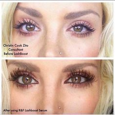 Want long eyelashes? Try Lash Boost with biotin and keratin. This lash growth serum is clinically shown to visibly improve eyelash volume and length in just 4 weeks. Longer Eyelashes, Long Lashes, Thicker Eyelashes, Lash Boost Results, Rf Lash Boost, Roden And Fields, Lash Growth Serum, Best Lashes, Keratin