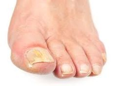 mycose ongles pieds