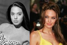 Kim Kardashian Nose Job | ... Jolie Look – Before and After Nose Job « Celebrity Plastic Surgery