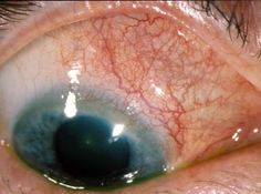 Scleritis – Causes, Symptoms, Diagnosis, Treatment and Ongoing care - Inflammation of the sclera, part of the eye's outer coat System(s) affected: Ocular   Read more: http://health.tipsdiscover.com/scleritis-causes-symptoms-diagnosis-treatment-ongoing-care/#ixzz2llpJGtT2