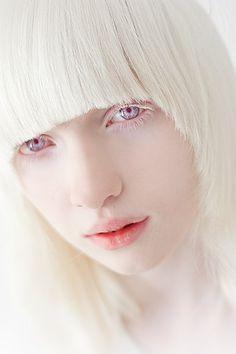 Nastya Zhidkova, albino model