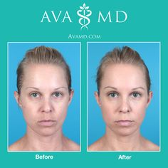 For more information about treatments, please visit avamd.com