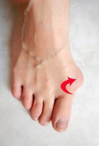 Benefits Of Walking Daily, Bunion Relief, Gel Toes, Hammer Toe, Tough Day, Plantar Fasciitis, Chronic Pain, Pedicure, Surgery