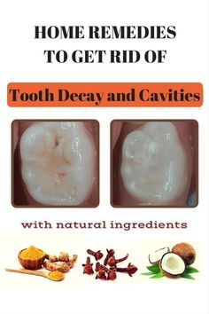 Home Remedies to Get Rid of Tooth Decay and Cavities - amazingbeautytips