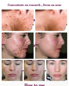 Make skin more delicate. Shrink Pores, Remove Acne, How To Get Rid Of Acne, Facial Oil, Face Serum, Acne Scars, Acne Treatment, Beauty Routines, Face And Body