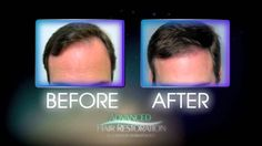 Dr. Timothy Jochen not only is a specialist in hair restoration and a leader in the field of medical dermatology and cosmetic surgery, but he also enjoys the artistic side of hair restoration. http://hairtransplantphysician.com