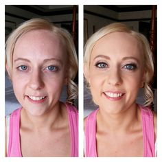Before & Afters