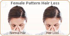 sudden facial hair growth in women