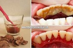 Cómo deshacerse de la placa dental, sarro, encías sangrantes y de una manera muy simple y fácil, sin dolor – Remedios Naturales
