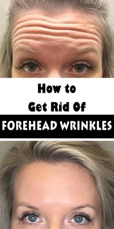 How to Get Rid of Forehead Wrinkles, Look Ten Years Younger With Out Botox, Surgery Or Pain Wrinkle Remedies, Too Faced, Prevent Wrinkles, Tips Belleza, Anti Wrinkle, Wrinkle Creams, Acne Scars, How To Get Rid, How To Remove
