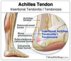 This attachment point of the tendon to the heel bone has a very poor blood supply to the tendon which can cause degeneration of the tissue or injury can occur. #achillestendonitis