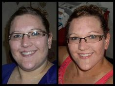 """Janna is WINNING her war on Weight, Diabetes and PCOS! You can too! www.getskinnywithannie.com   This is Janna...  """"I have PCOS. I don't have infertility or actual cysts on my ovaries; however, you can still have it w/out these symptoms. I have ALL the other issues that go along with it. Weight gain(especially in the belly), acne, facial hair, irregular periods, fuzzy hair, ect. I was diagnosed in 2005 when my daughter was a year old. My weight steadily climbed from there and before I knew…"""