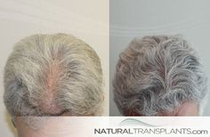 Hair Transplant Before and After   Hair Transplant Before and After