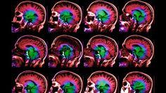#¿Por qué los cerebros de algunas personas envejecen más rápido que el de otras? - Diario Perú21: Diario Perú21 ¿Por qué los cerebros de…