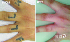 The Valley's Best Tattoo Removal with the exclusive PicoWay laser. Call 855-2DELETE to receive a complimentary consultation at either our Boston or Phoenix salon.