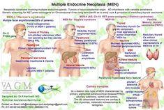 Multiple Endocrine Neoplasia ◬                                                                                                                                                                                 More