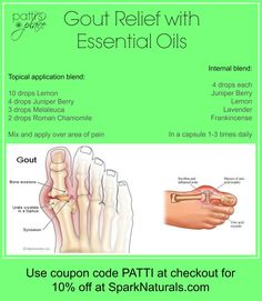Gout Relief with Essential Oils ~ Patti's Place