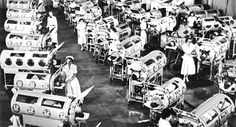 the worst polio epidemic in US history came in 1952, where almost 58,000 cases were reported. Out of those figures, 3145 died and a further 21,269 were left with varying degrees of paralysis