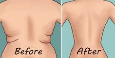 Even if you are all dressed up, a single look on the excess fat on your back can destroy your confidence completely. Many people lack self-confidence since