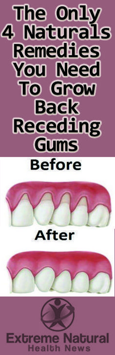 The Only 4 Natural Remedies You Need To Grow Back Receding Gums http://www.extremenaturalhealthnews.com/the-only-4-natural-remedies-you-need-to-grow-back-receding-gums/