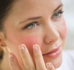 Acne Rosacea symptoms are present when rosacea looks like and is often mistaken for, acne. There are four types of Rosacea but one of them looks like acne Rosacea Symptoms, Acne Rosacea, Skin Treatments, Anti Redness, Healthy Skin, Sensitive Skin, Wellness, Beauty, Rosacea