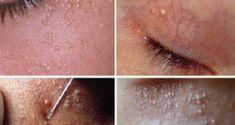 white skin cysts