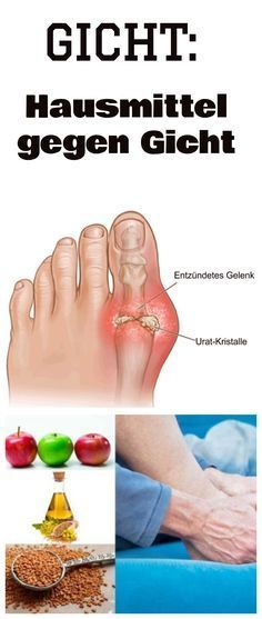 have gout? Home remedies for gout help against pain and gout attacks . -You have gout? Home remedies for gout help against pain and gout attacks . Home Remedies For Gout, Gout Remedies, Natural Acne Remedies, Herbal Remedies, Arthritis, Infection Des Sinus, Health Cleanse, Gota, Diet And Nutrition