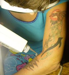photos of Tattoo Removal At Home Remedies