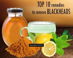 Top 10 Remedies to Remove Blackheads