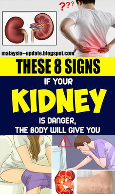 In the event that Your Kidney Is in Danger, the Body Will Give You These 8 Signs! remedies In the event that Your Kidney Is in Danger, the Body Will Give You These 8 Signs! Homemade Pimple Remedies, Sunburn Remedies, Health Remedies, Holistic Remedies, Acne Remedies, Health Tips, Health And Wellness, Health Foods, Women's Health