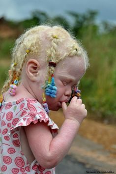 Approximately one person in 17,000 is born with the condition, a rare genetic disorder characterised by a loss of pigment in the skin, hair and sometimes the eyes. Albino people lack melanin, the substance responsible for natural hair and skin colour. The condition affects people of all ethnicities globally.