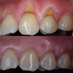 Treatment for abfraction tooth wear - Mundpflege Happy Dental, Smile Dental, Dental Care, Dental Pictures, Dental Videos, Dental World, Dental Anatomy, Dental Fillings, Dental Design