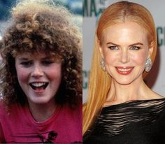 Nicole Kidman then and now.Looks like chin was different as a young girl.