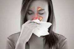 Pokrzywa i jej właściwości oraz zastosowanie w lecznictwie What Causes Sinus Infections, Symptoms Of Sinusitis, Sinus Allergies, Allergy Symptoms, Dust Allergy, Allergy Relief, Blocked Sinuses, Trapped Gas, Arthritis