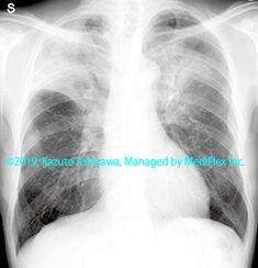 11. その他の肺疾患 症例103:慢性好酸球性肺炎 胸部単純X線写真,『コンパクトX線アトラスBasic 胸部単純X線写真アトラス vol.1 肺』