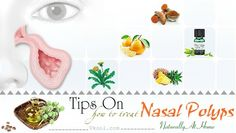 how to treat nasal polyps naturally… – Nasal Polyps Treatment How To Stop Wheezing, Phlegm In Throat, At Home Tattoo Removal, Numbness In Hands, Getting Rid Of Phlegm, Tooth Infection, Oregano Oil, You Loose, Eye Drops